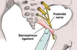陰部神経痛