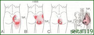 中臀筋、小殿筋トリガーポイントによる殿部痛