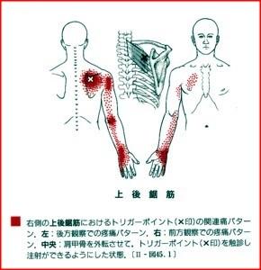 上後鋸筋トリガーポイントによる肩,腕の痛み,しびれ,小指側痛みしびれ