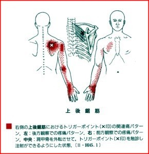 腕の痛み,しびれ