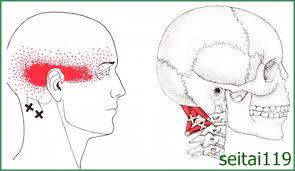 札幌市で頭痛慢性肩こり治療おすすめ