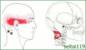 頭痛治療おすすめ