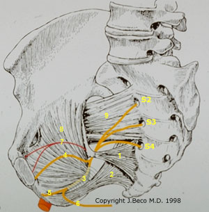 札幌市-陰部神経痛と陰部神経絞扼