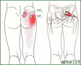 坐骨神経痛と梨状筋の関係
