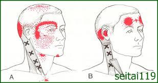 胸鎖乳突筋による頭痛、耳鳴り、めまい