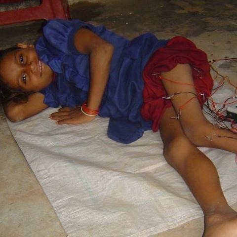 Elektroakupunktur bei einem Kind, Indien