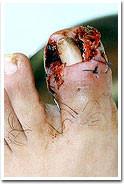 3. 巻き爪手術直後