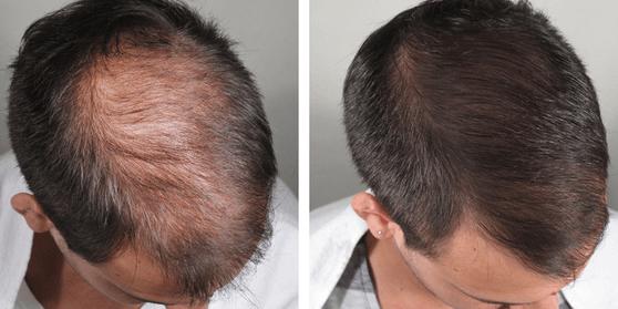 transplante de pelo, recuperar el cabello, alopecia, Racderma, dermatologo para cabello