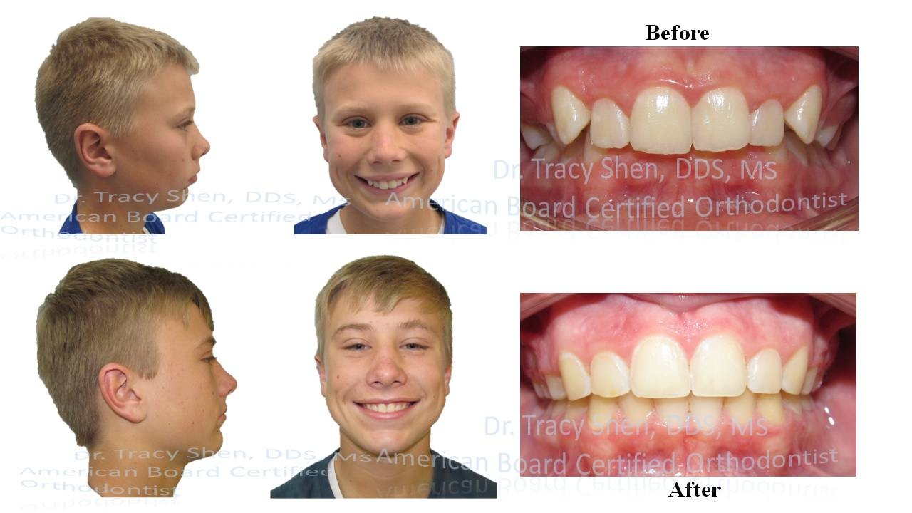 Cl II non teeth removal treatment before and after