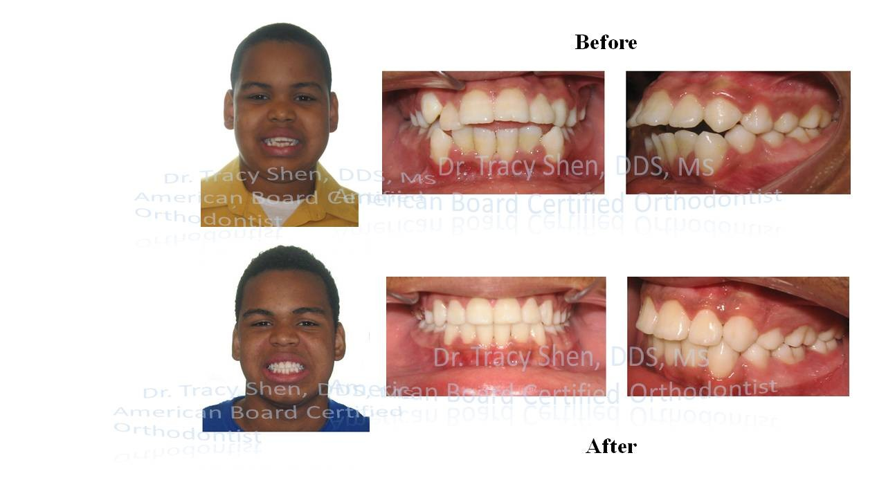 Before And After Orthodontic Treatment Suncreek Orthodontics In Allen Texas Affordable Braces Invisalign