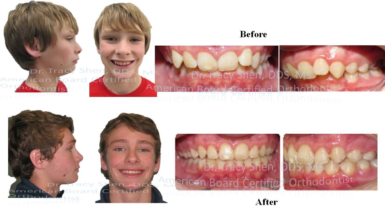 Cl II non teeth removal treatment