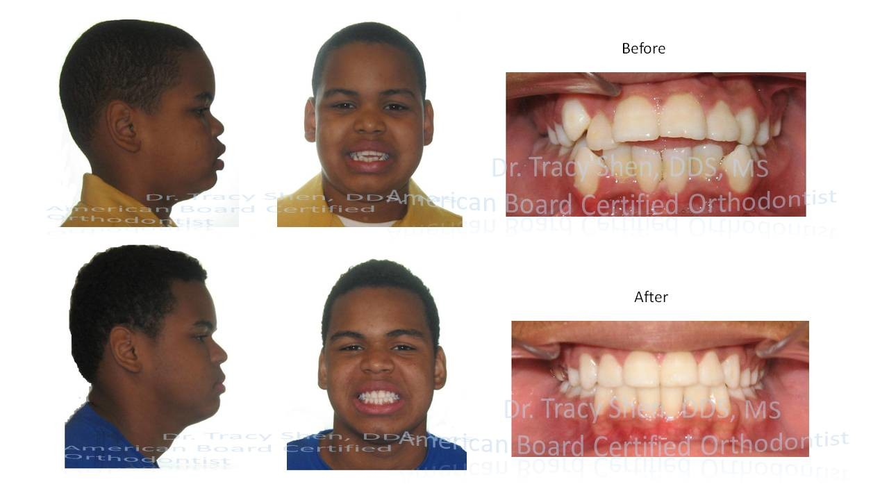 four premolars extraction orthodontic treatment before and after