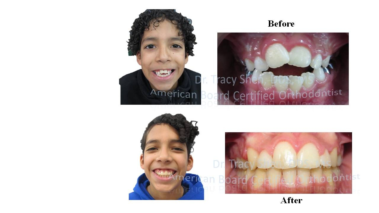 Anterior open bite treatment before and after with missing laterals