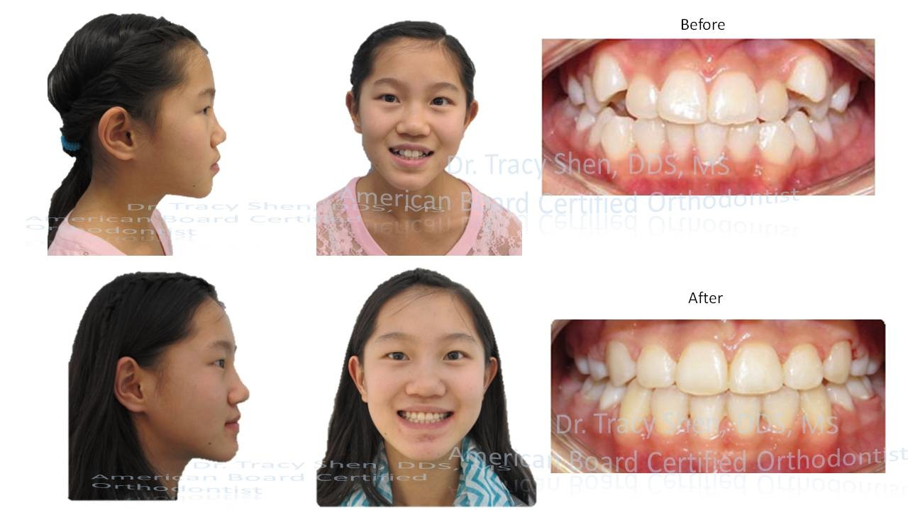 Before and After orthodontic treatment - Suncreek