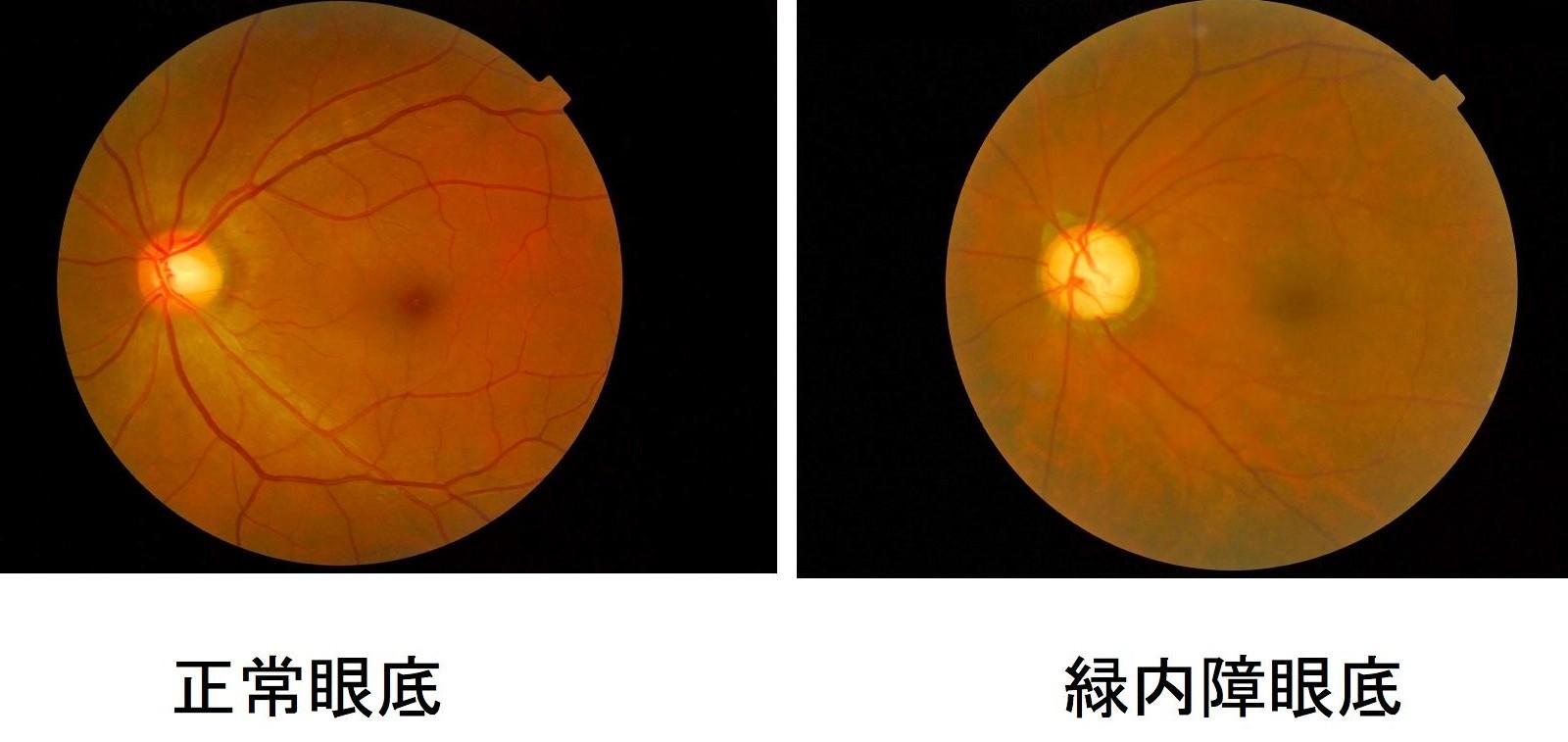 検査 眼底