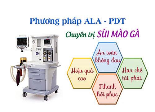 Phương pháp Ala-PDT