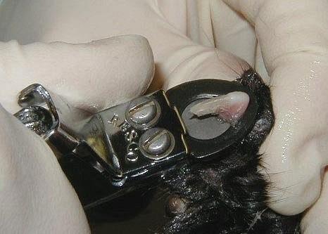 Операция по удалению когтевой фаланги пальца крайне болезненна