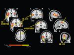 脳機能磁気共鳴画像