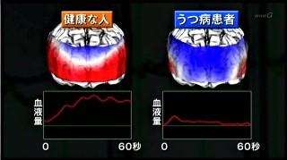 健康な人とうつ病患者の血流比較