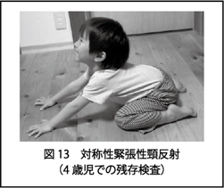 性 緊張 反射 頚 非対称 性