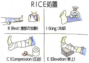 RICE処置とはRest(患部の安静)ーIcing(冷却)―Compression(圧迫)ーElevation(挙上)