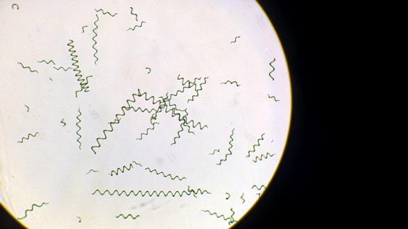 Cianobacteria Arthrospira platensis. Foto del autor