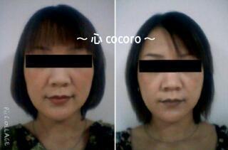お顔用脂肪溶解(小顔)ジェル2週間使用