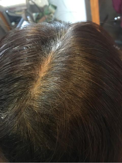 カラー施術前の頭頂部です。