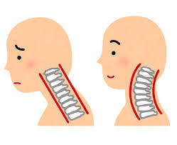 ストレートネックと通常のカーブの頸椎