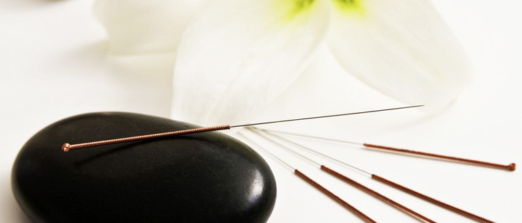 Akupunktur in der Heilpraxis Gitta Schwind in Planegg
