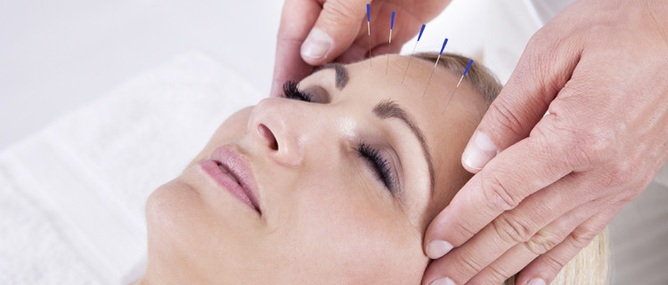 Faltenakupunktur in der Heilpraxis Gitta Schwind in Planegg