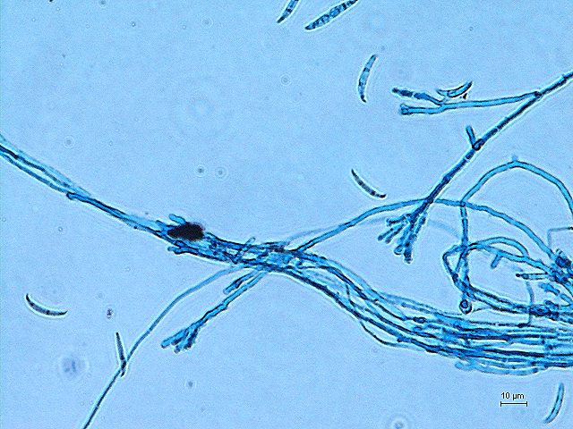 A fungus, Fusarium sp., producing a crescent-shaped spore called, macroconidia. Photo credits to Jia May