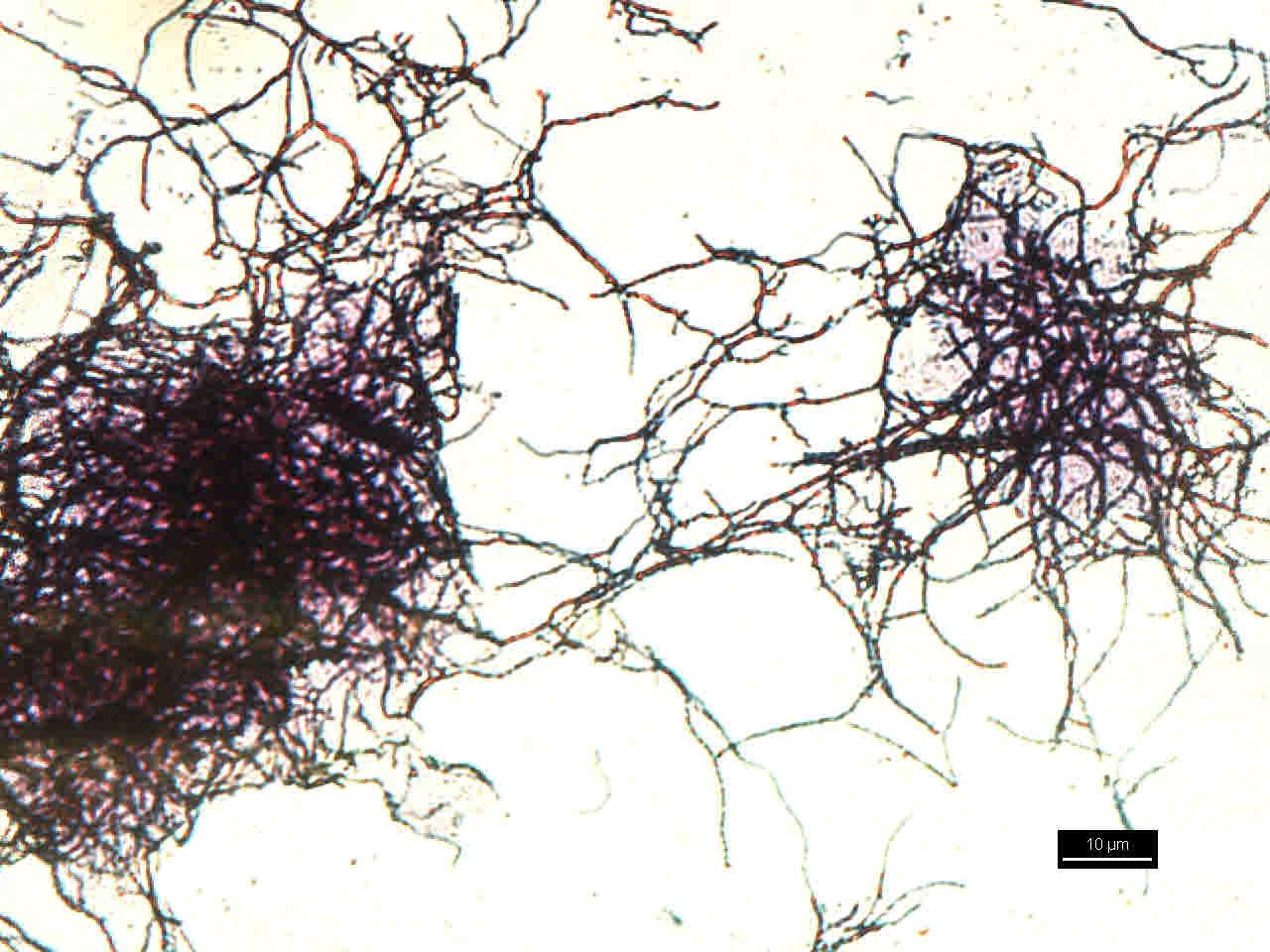 Actinomyces. Photo credits to Nurul