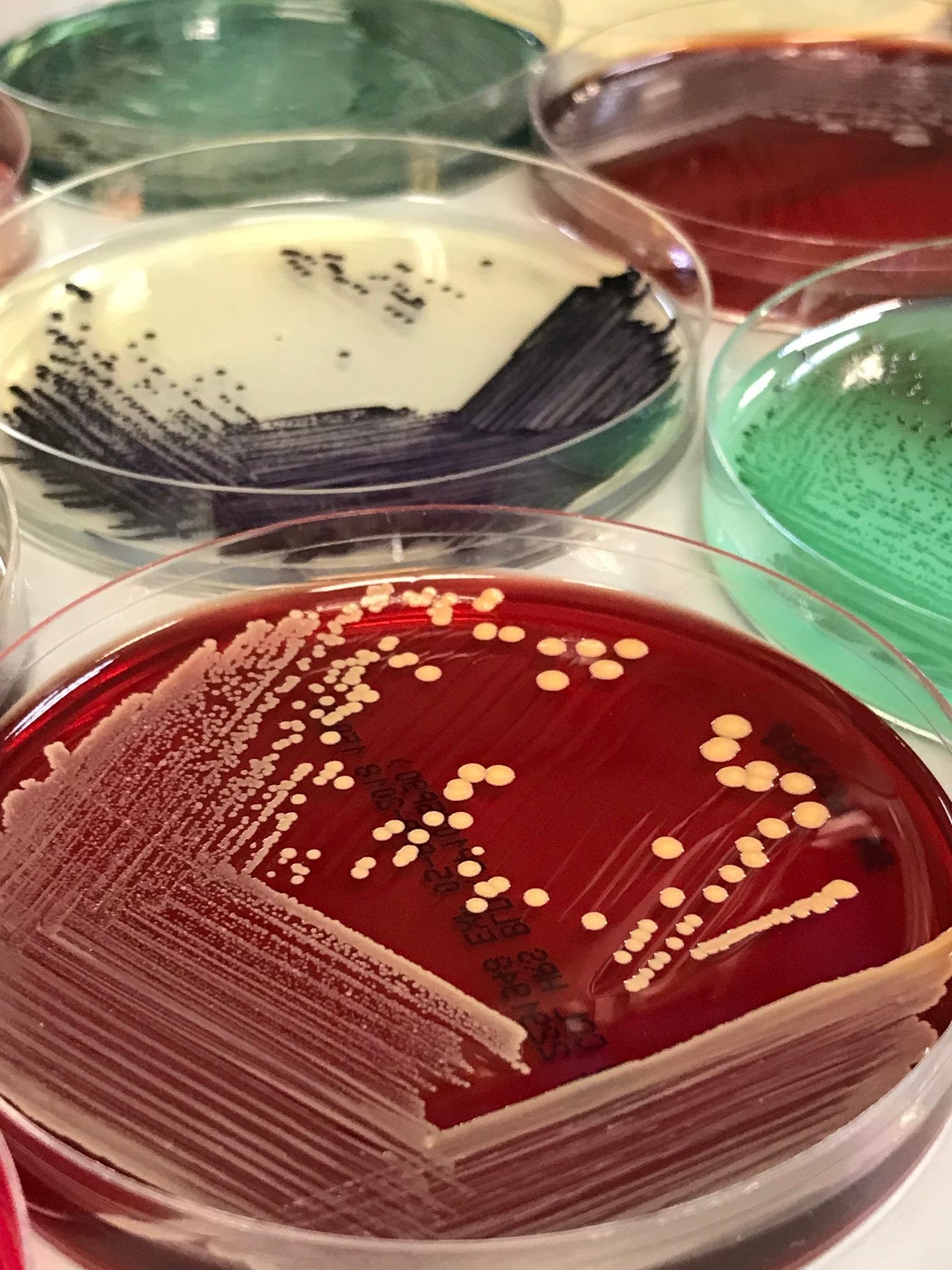 Methicillin-resistant Staphylococcus aureus. Photo credits to Calvin