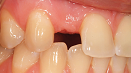 Ausgangssituation Zahnlücke