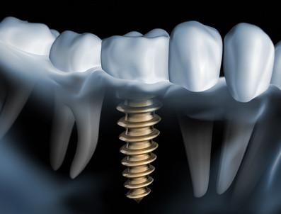 Implantate Zahnarztpraxis Dr. Bettina Seidl