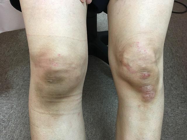 豊田市 おおつか接骨院 右膝蓋骨折 外観写真