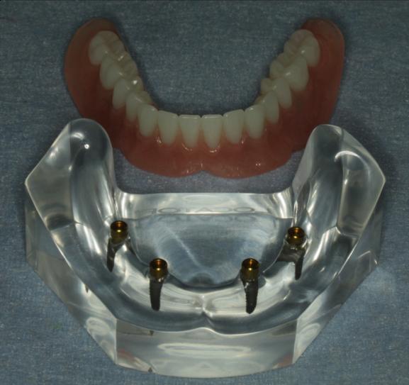 インプラントを入れる前に歯周病菌がいないか確認する必要があります。