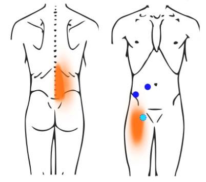 ●印は腹部の筋肉にできたトリガーポイント。朱色で示す離れた範囲に「関連痛」を起こします。