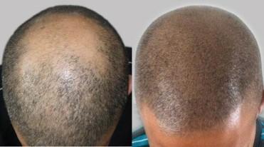 Tricho Pigmentierung, Haarberdichtung