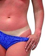 En cas de brûlure superficielle du 1er degré : après avoir longuement refroidi la zone brûlée, appliquez une crème hydratante spéciale brûlure ou gel d'aloé véra.