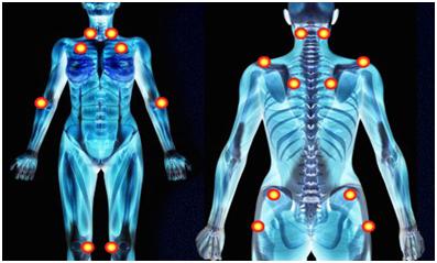 De nos jours, nous disons que quelqu'un qui souffre de Fibromyalgie présente des douleurs, au moins sur 11 points du corps.