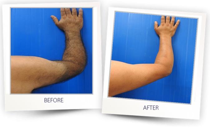 dauerhafte Haarentfernung Arme und Hände in Köln mit SHR Technologie der Alma Laser Platinum