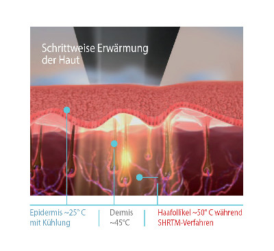 dauerhafte Haarentfernung Köln mit SHR Alma Laser