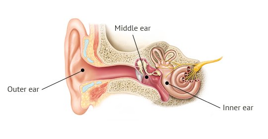 Causes of hearing loss - Phonak Kenya