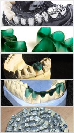 Kronen, Brücken aus dem 3D Drucker