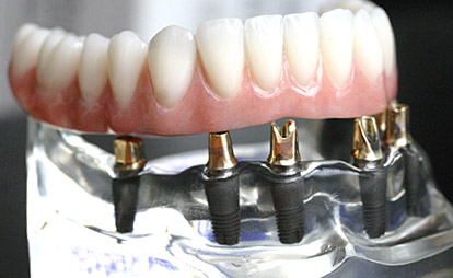 Prothese auf mehreren Implantaten