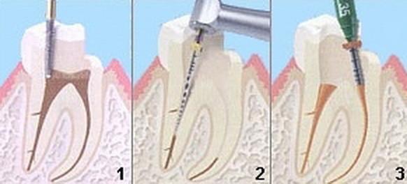 Reinigen der Wurzelkanäle mit anschließender Wurzelfüllung