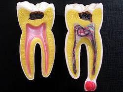永井歯科医院 茨木市 虫歯とは?