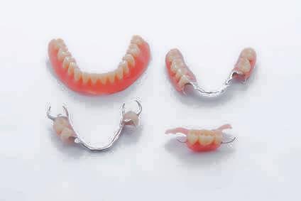 入れ歯治療 永井歯科医院 茨木市